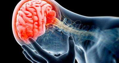 Kontuziya golovnogo mozga 1 21120259