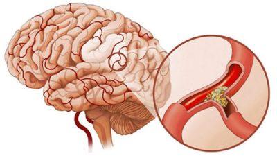 cerebralnyy ateroskleroz 4 28081354
