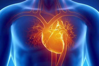 kardioskleroz infarkt 1 29194356