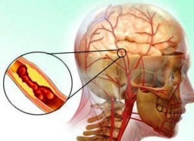 Склероз сосудов головного мозга симптомы лечение препараты