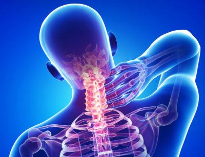 Склероз смежных замыкательных пластинок шейного отдела