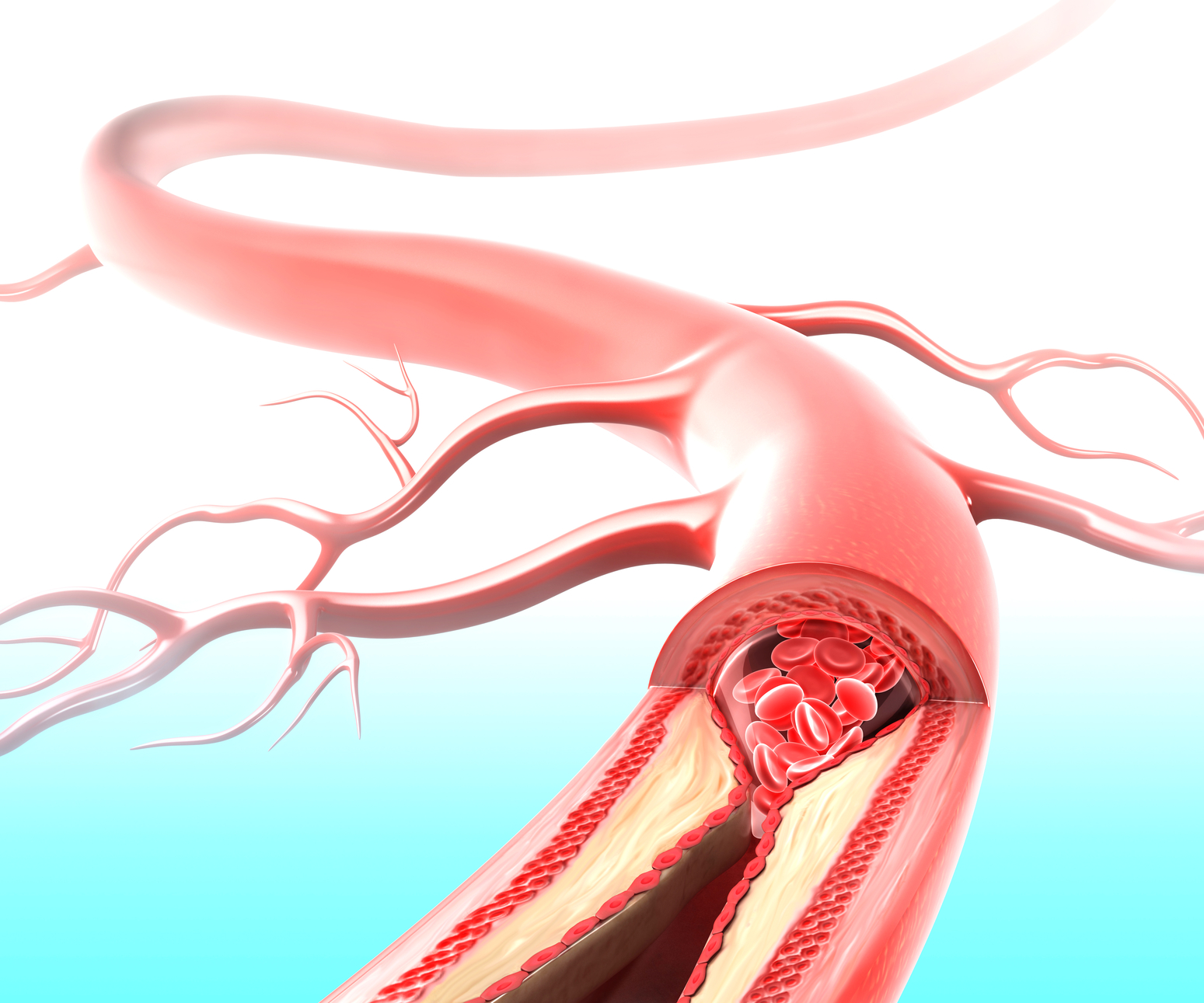 karotidnyy ateroskleroz 1 09075250