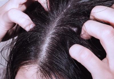 Противогрибковые шампуни для волос