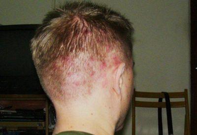Прыщи на голове в волосах у мужчин — причины и лечение народными средствами