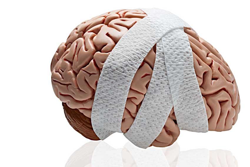 sotryasenie golovnogo mozga 2 06115052